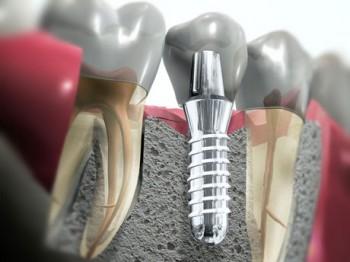 Od maja zapraszamy na zabiegi implantacji
